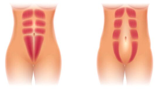 Nogle af de bedste Delte mavemuskler behandlinger